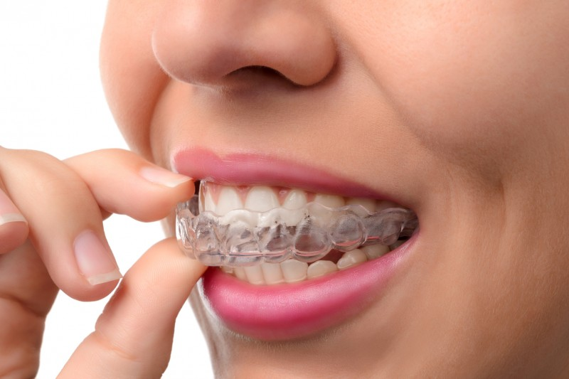 Invisalign is a great alternative to traditional braces